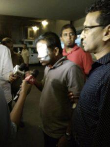 MP Ali Nizar with eye patch
